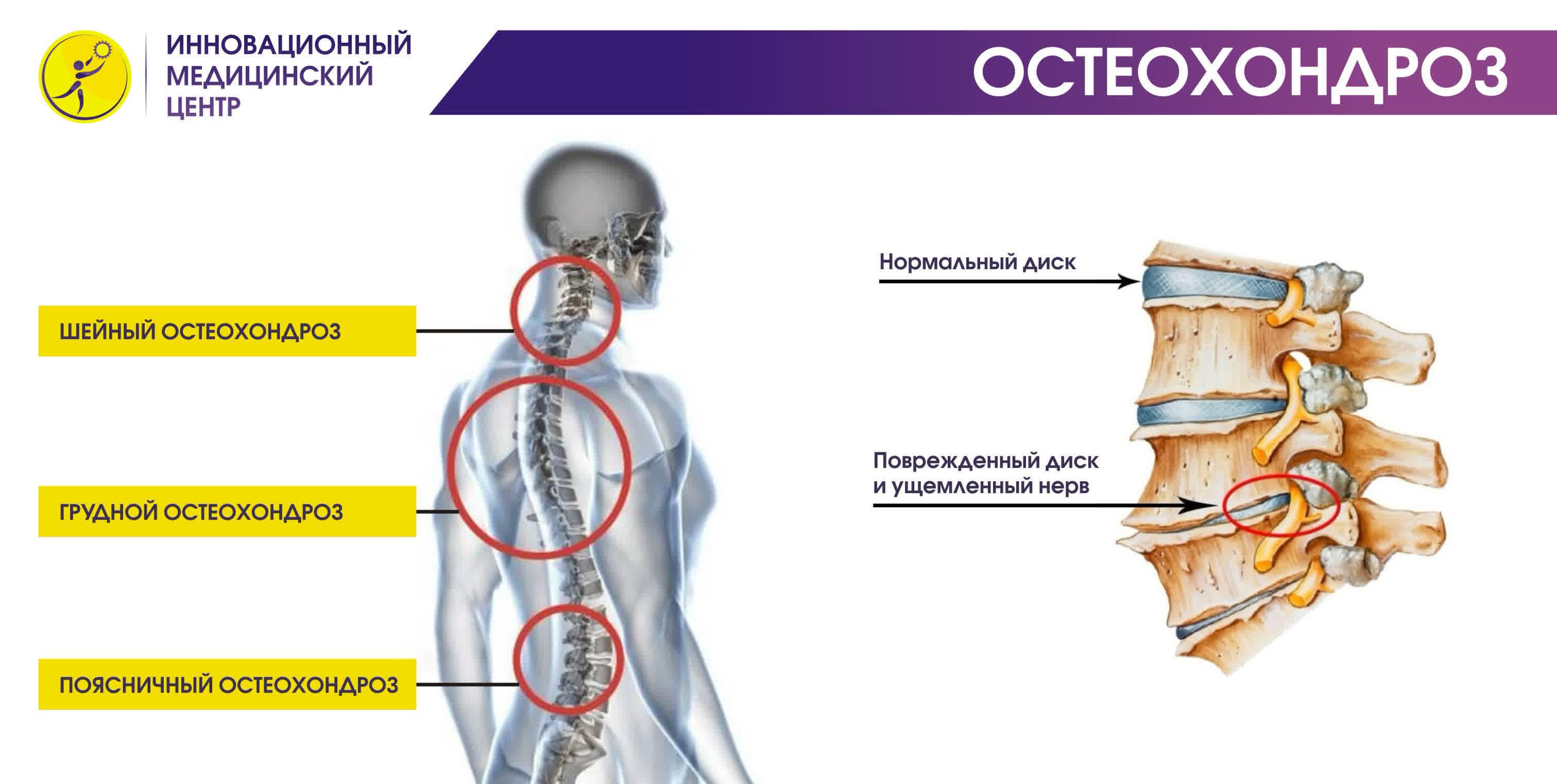 Причины, симптомы, лечение и профилактика остеохондроза шейного отдела позвоночника