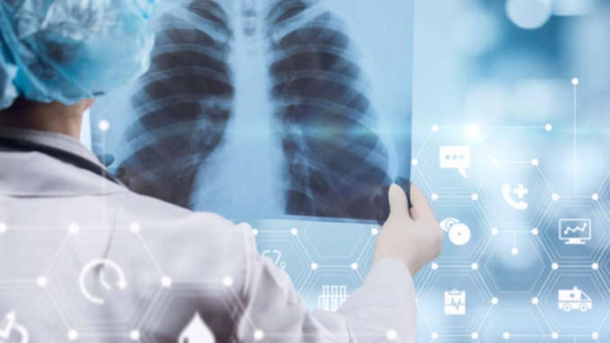 Симптомы и методы лечения туберкулеза бронхов