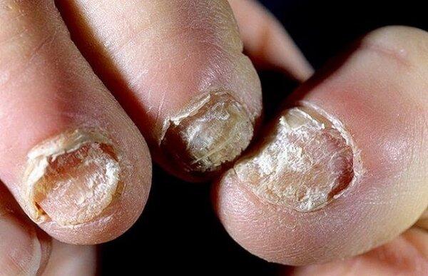 Симптомы грибка на руках и методы лечения