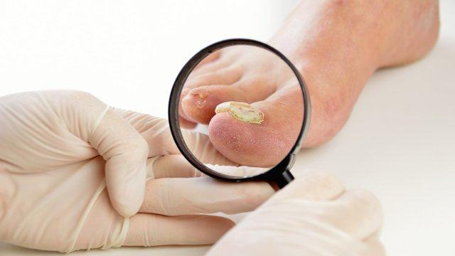 Формидрон от грибка ногтей на ногах — отзывы, цены, аналоги