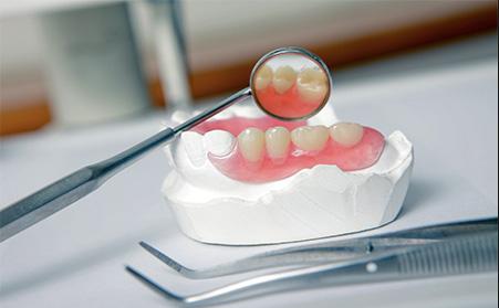 Что такое нейлоновые зубные протезы, обзор цен