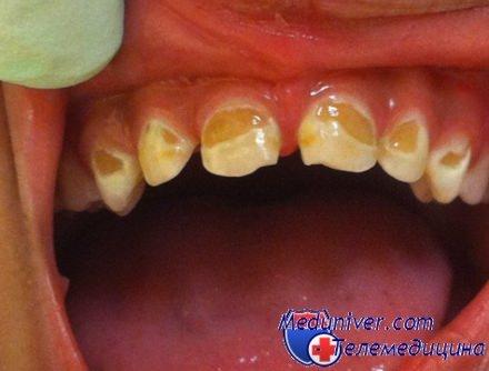 Потемнел зуб: какие причины, к кому обратиться и методы лечения - много зубов