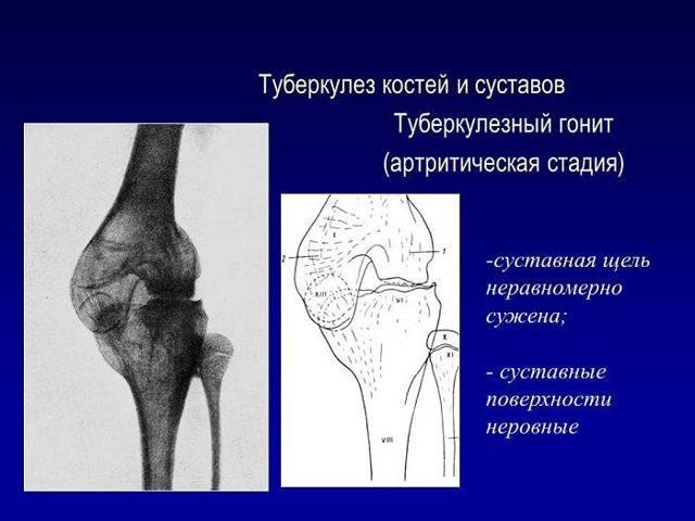 Туберкулез костей: разновидности, причины возникновения, лечение