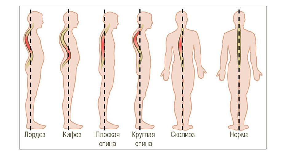 Болезнь шейермана-мау – причины и лечение юношеского кифоза