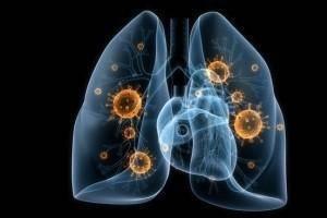 Можно ли гулять при пневмонии?