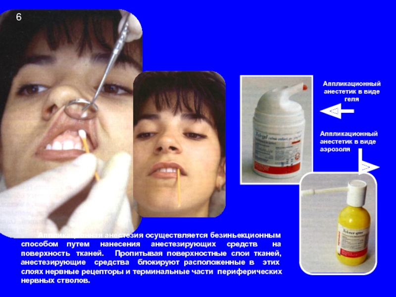 Как работают анестетики