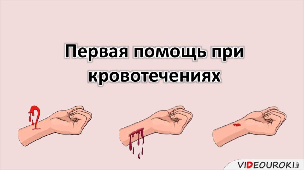 Первая помощь и признаки венозного кровотечения