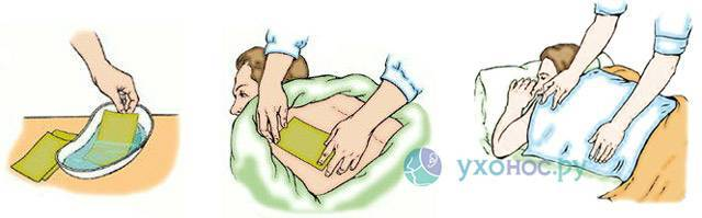 Можно ли греть бронхи при пневмонии