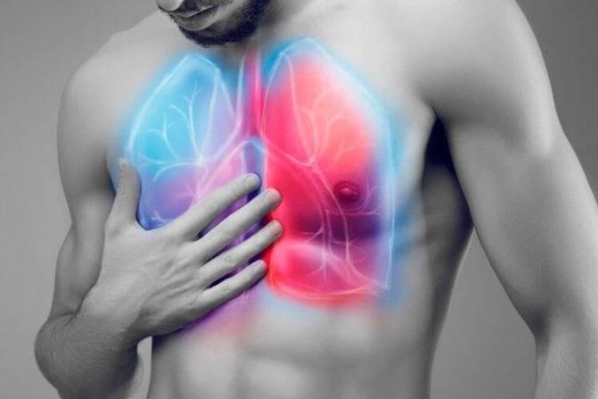 Симптомы и лечение пневмонии с кашлем, но без повышенной температуры