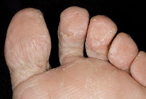 Грибок на ногах - лечение, симптомы, причины, диагностика и профилактика