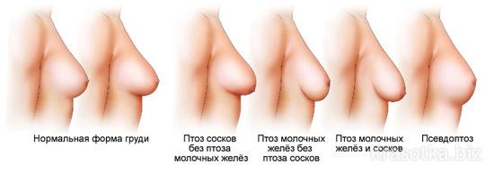 Птоз груди после лактации и кормления   mybreast.ru