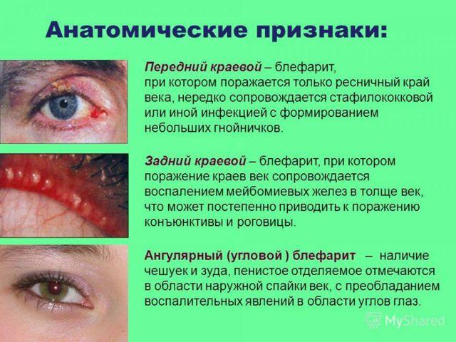 Мейбомит у взрослых и детей: типы, профилактика и лечение