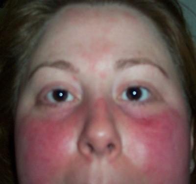 Системная красная волчанка - диагностика, симптомы, прогноз