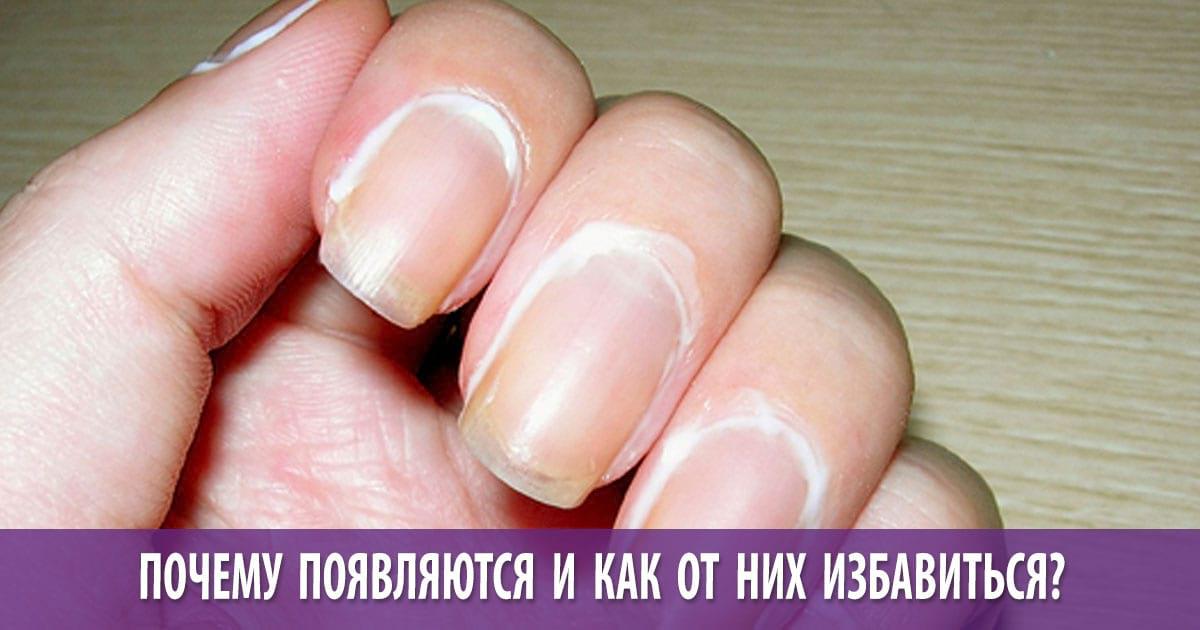 Заусенцы на пальцах рук