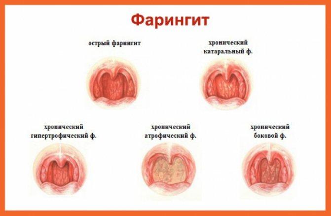 Обострение хронического тонзиллита