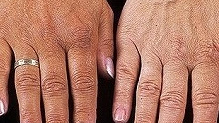 Болезнь аддисона: что это такое, симптомы и лечение, первые признаки