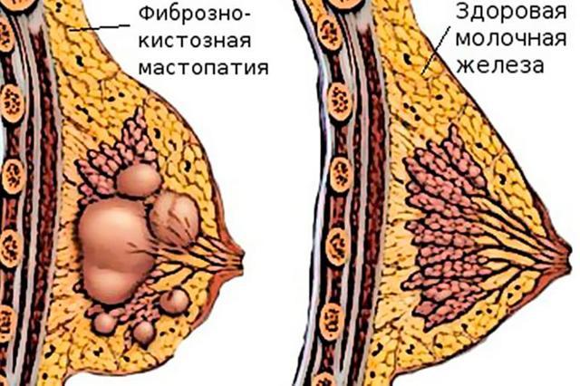 Мастопатия молочной железы – что это такое, как распознать и лечить все виды болезни?