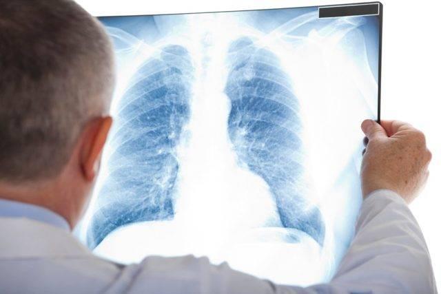 Прикорневая пневмония: симптомы и лечение у взрослых и детей, причины