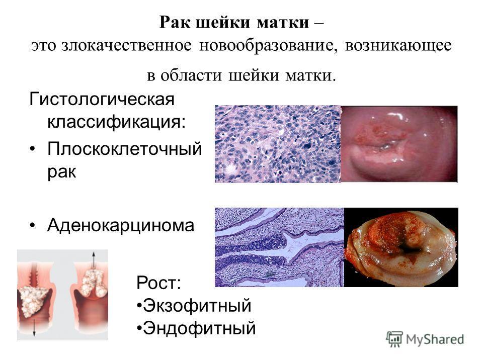 Аденокарцинома кожи – развитие, симптомы, лечение и прогноз