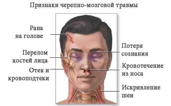 Онемение кожи головы с левой стороны. немеет голова: причины и особенности лечения