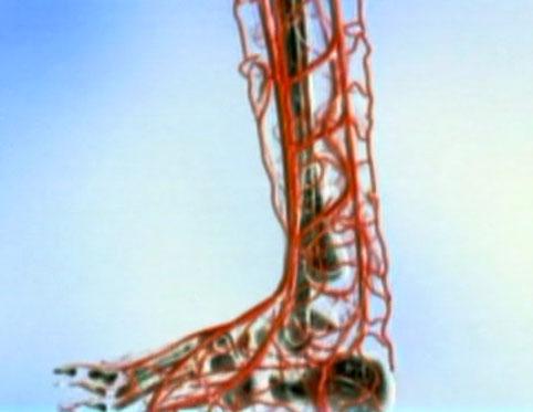 Облитерирующий эндартериит сосудов нижних конечностей