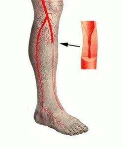 Признаки, лечение и последствия окклюзии артерий на ногах