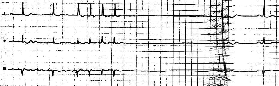 Синдром впв сердца на экг: чем опасен, признаки у ребенка, лечение