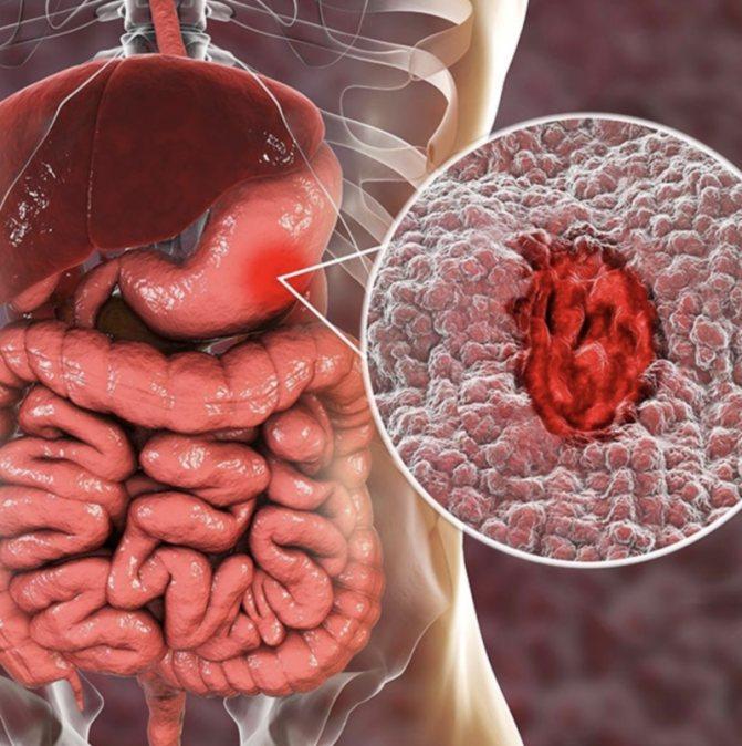 Бактерия хеликобактер пилори в желудке: причины появления