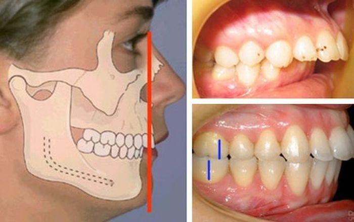 Дистальный прикус, фото до и после брекетов, исправление и лечение мезиальной, глубокой неправильной формы зубов у взрослых