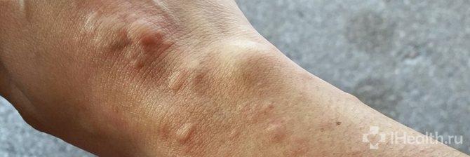 Аллергическая крапивница: причины, симптомы и лечение
