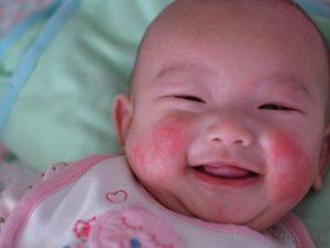 Диатез у новорожденных – на лице, лечение, симптомы, у ребенка, бепантен