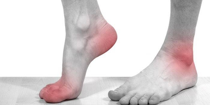 Слабость в ногах – симптомы, причины и лечение