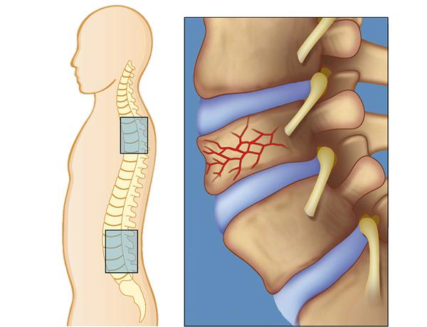 Травмы спины и позвоночника: особенности лечения и реабилитации
