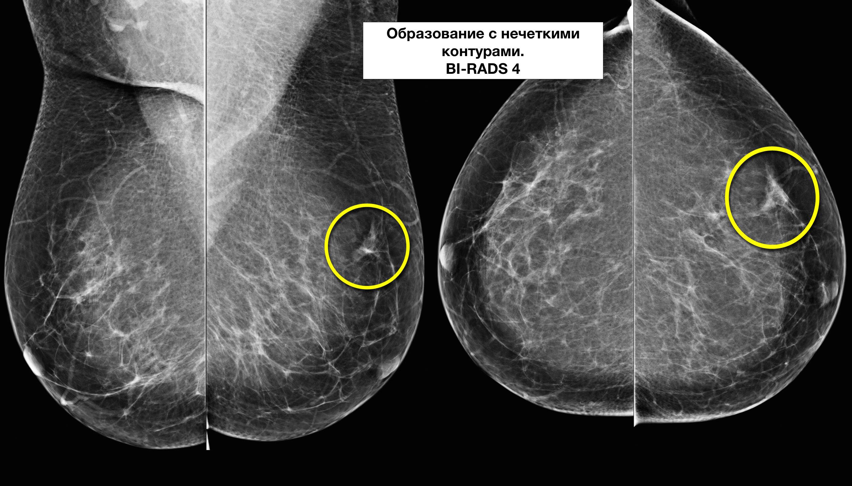 Жировые дольки в груди
