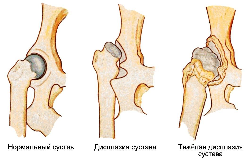Что такое дисплазия тазобедренных суставов у детей: как проявляется, методы лечения патологии