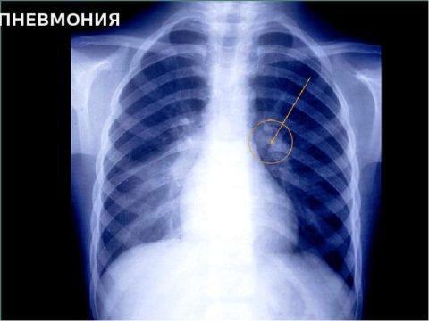 Как определить воспаление легких: основные признаки