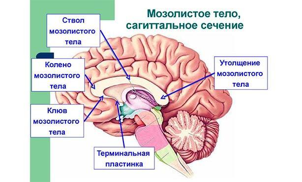 Агенезия мозолистого тела у плода направили на прерывания почему