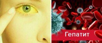 Сонная болезнь — симптомы, возбудитель, лечение сонной болезни