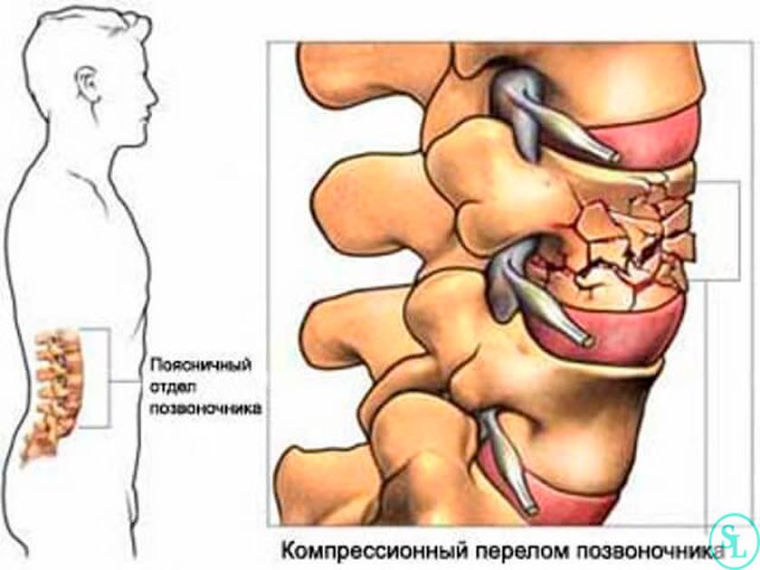 Компрессионный перелом позвоночника: причины, лечение, последствия