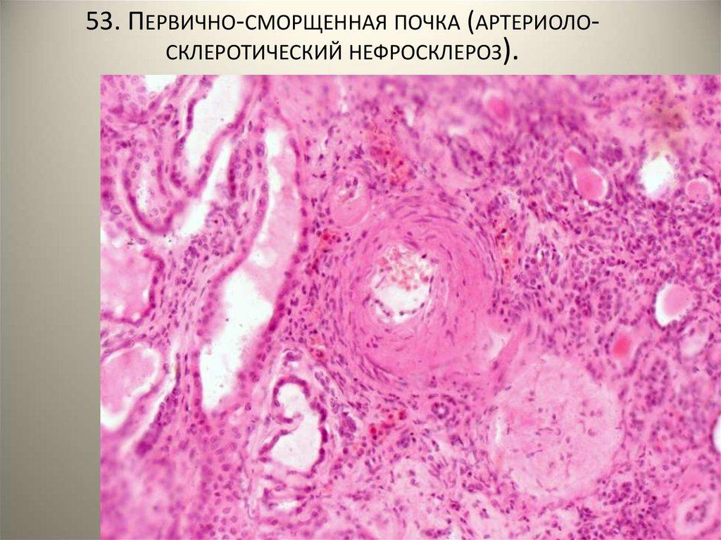 Причины возникновения нефросклероза