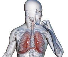 Пневмосклероз. причины, симптомы, признаки, диагностика и лечение патологии