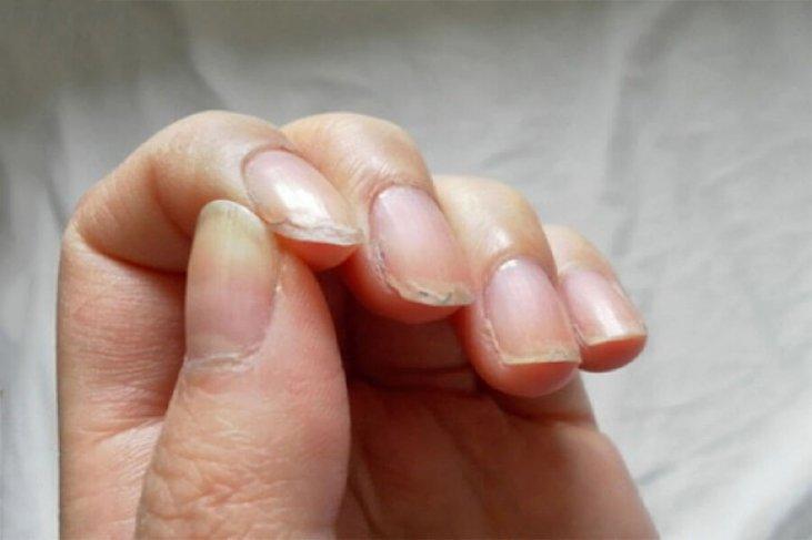 Почему слоятся ногти на руках, методы избавления от проблемы в домашних условиях