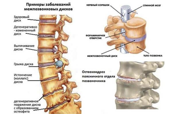 Лечебная диета при остеохондрозе грудного, шейного и поясничного отделов позвоночника: 10 основных принципов!