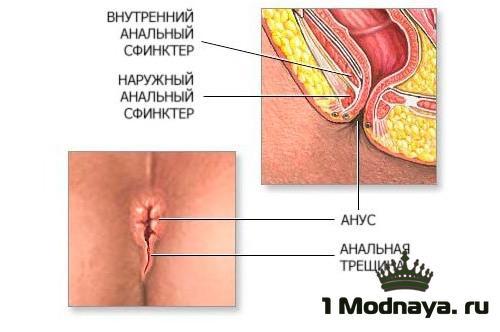 От чего печет в заднем проходе. почему чешется в заднем проходе: причины зуда и лечение