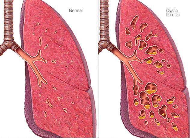 Фиброз легких – симптомы, методы диагностики, терапии и профилактики