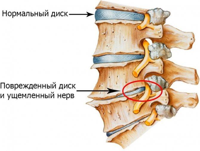 Дорсопатия грудного и поясничного отдела позвоночника что это такое
