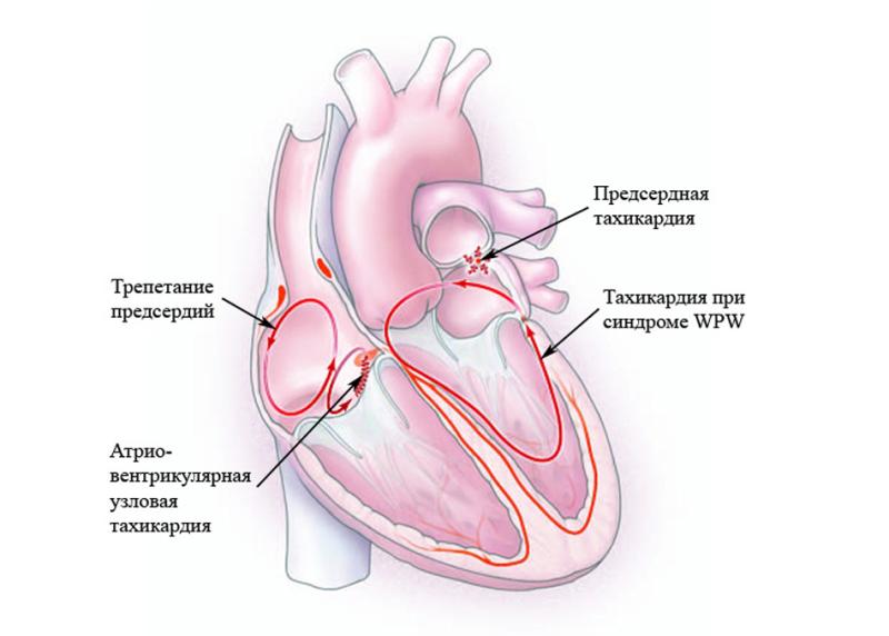 Синдром преждевременного возбуждения желудочков. | eurolab | научные статьи