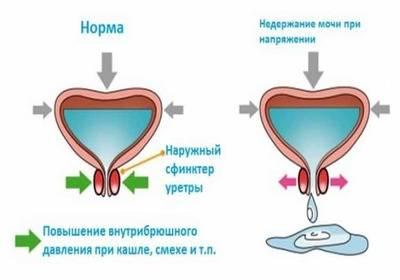 Непроизвольное мочеиспускание у женщин разных возрастов при кашле, смехе или чихании