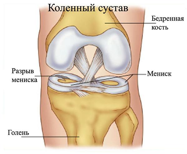 Грамотная диагностика и лечение повреждений медиального мениска коленного сустава