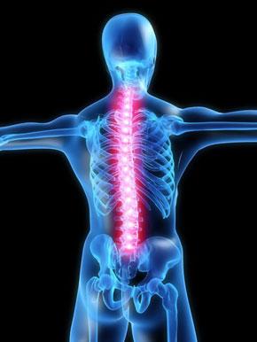 Вертеброгенная цервикокраниалгия: что это, образование болезни на фоне шейного остеохондроза, лечение, симптомы